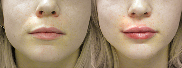 Lip Augmentation Before & After Photos