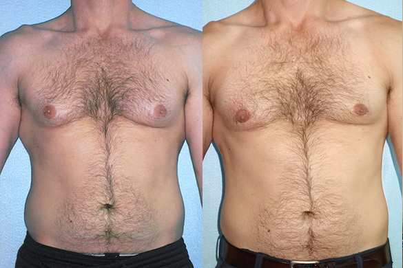 Gynecomastia (Male Breast Reduction)Before & After Photos