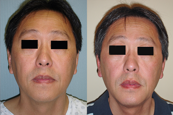 Chin Augmentation for Men Before & After Photos