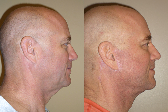Face & Neck Lift for Men Before & After Photos