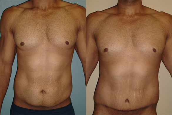 Tummy Tuck for Men Before & After Photos