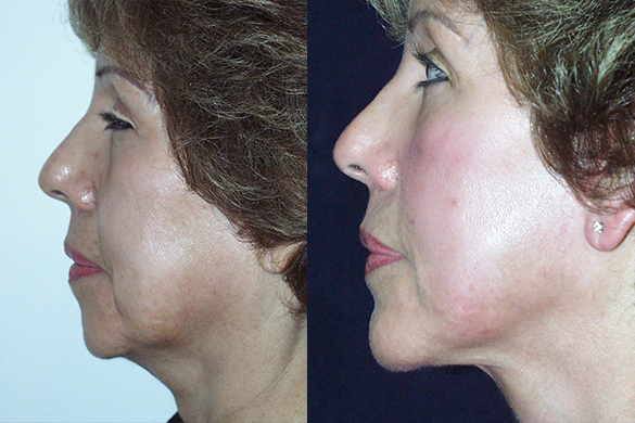 Chin Augmentation Before & After Photos Left