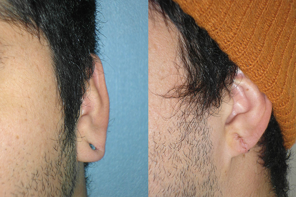 Earlobe Repair Before & After Photos Right