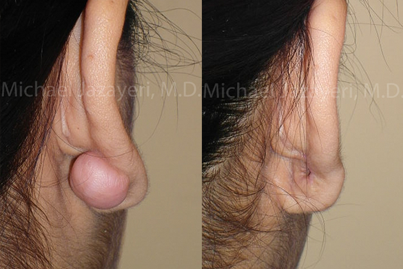 Keloid Removal Before & After Photos