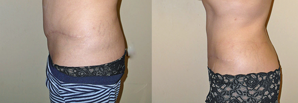 liposuction orange county Before & After Photos Left