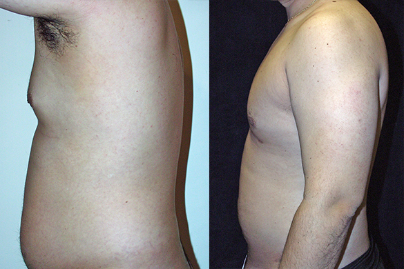 Abdomen, and Chest Liposuction Before & After Photos Left