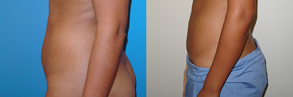 Liposuction Before & After Photos Left