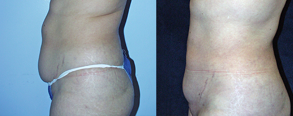 Abdomen, and Flanks liposuction Before & Afte Photos Left
