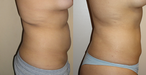 Abdomen, Flanks, and Back liposuction Before & Afte Photos Right surgery