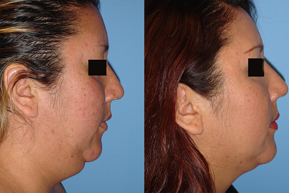 neck Liposuction before and after photo right