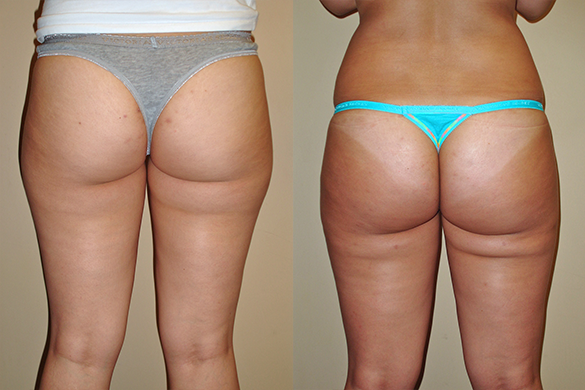 thighs liposuction back