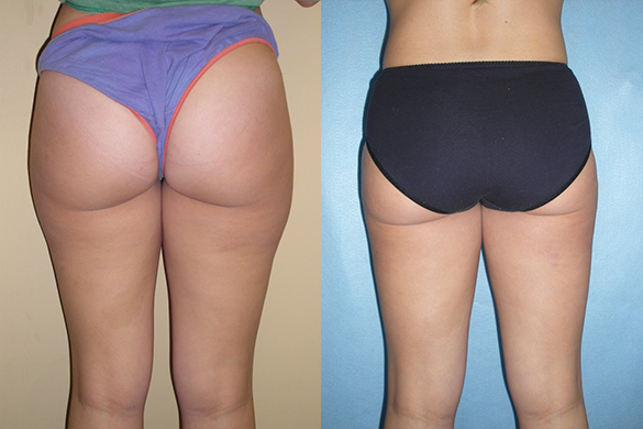 liposuction Before & After Photos Back
