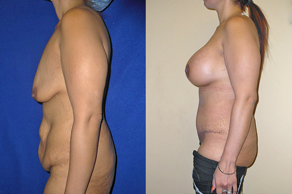 Mommy Makeover left before and after photos