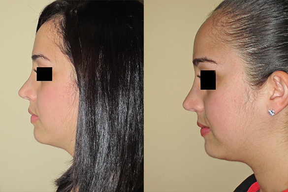 Non Surgical Nose Job Before & After Photos Left