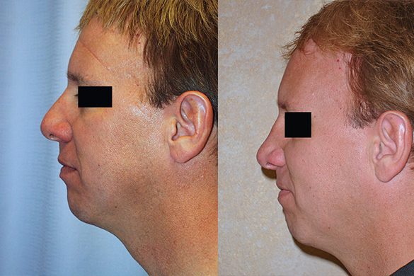 Rhinoplasty Before & After Photos Left