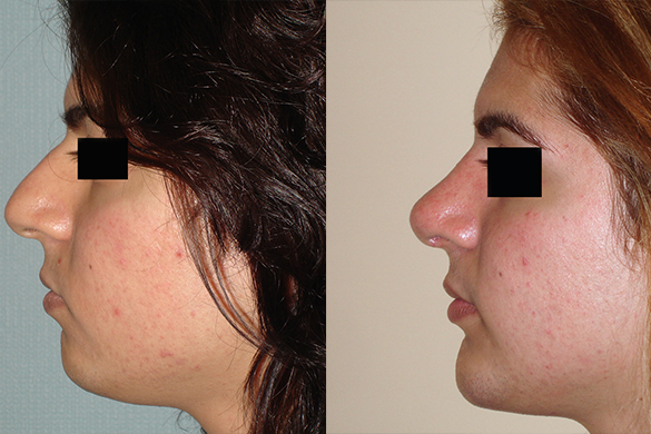 Rhinoplasty & Chin Augmentation Before & After Photos Left