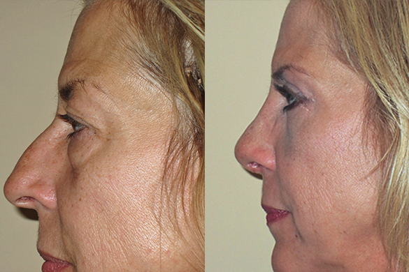 Rhinoplasty & Eyelid Surgery Before & After Photos Left