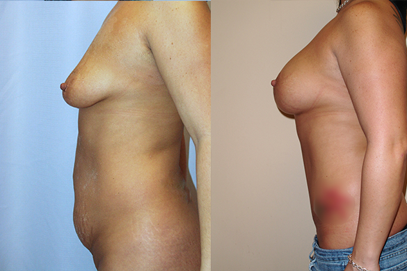 Mommy Makeover & Tummy Tuck Before & After Photos Left
