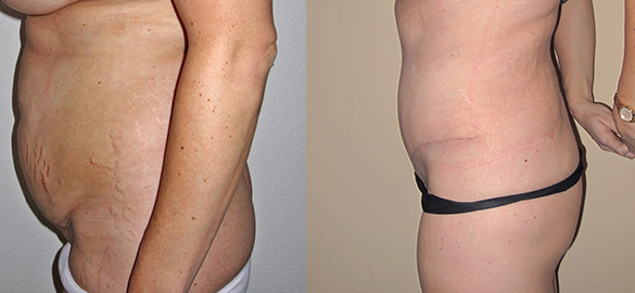 Tummy Tuck Before & After Photos Left