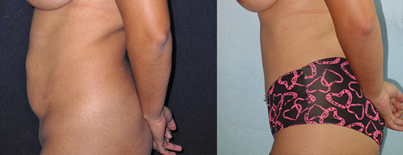 Tummy Tuck surgery Before & After Photos Left