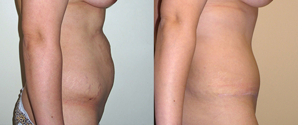 Tummy Tuck Orange County Before & After Photos