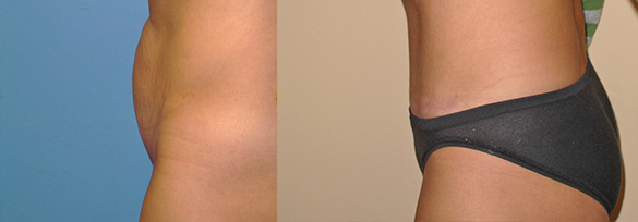 Tummy Tuck Orange County Before & After Photos Left Side