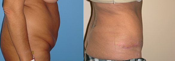 Abdominoplasty Orange County Before & After Photos Right Side