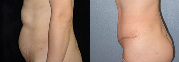 Abdominoplasty Orange County Before & After Photos Left Side