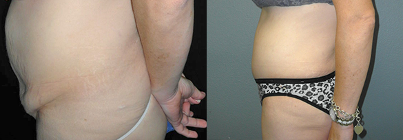 Abdominoplasty Santa Ana Before & After Photos Left Side