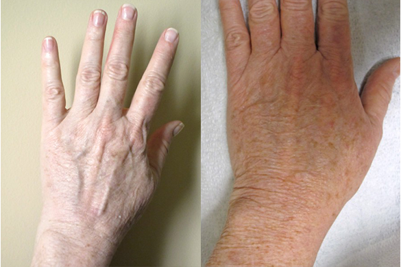 Hand Rejuvenation Before & After Photos Left Side