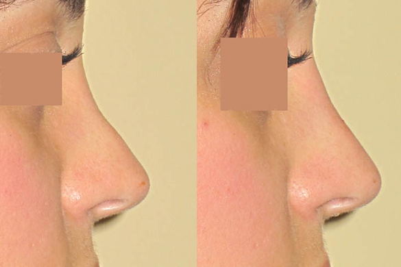 Non Surgical Nose Job Before & After Photos Right