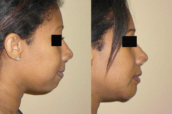 Chin Augmentation Before & After Photos Right