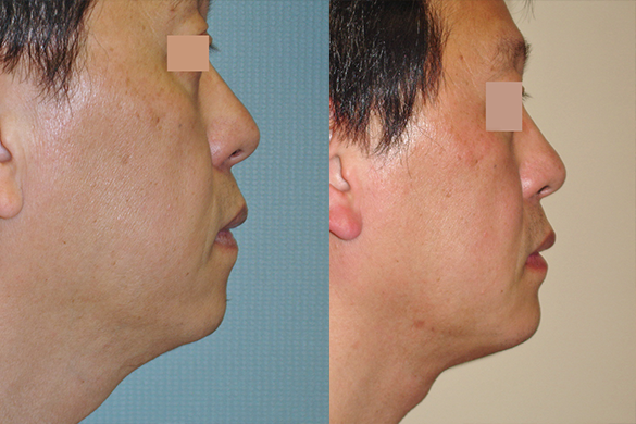 neck liposuction Before & After Photos Right