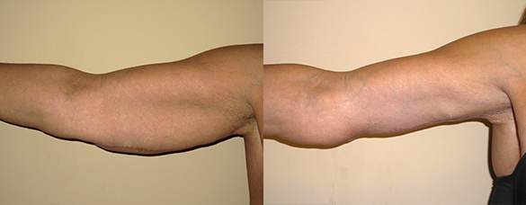 Arm Lift Before & After Photos Left