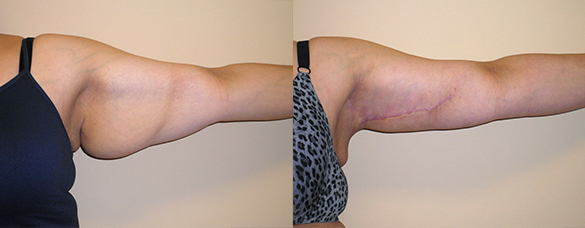 Arm Lift Before & After Photos Right