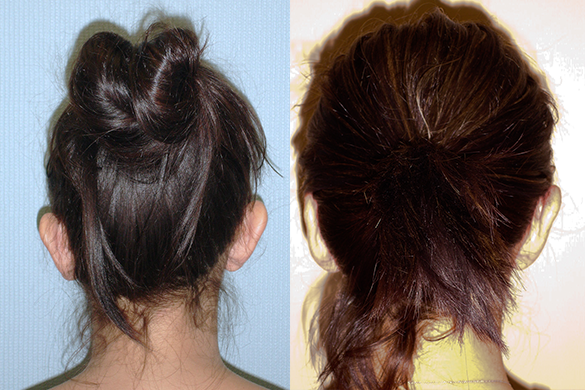 Ear Pinning Before & After Photos