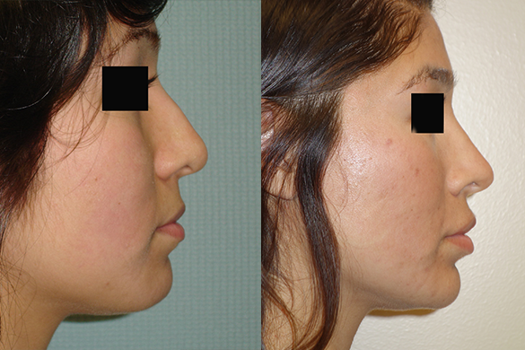 Rhinoplasty Before & After Photos Right