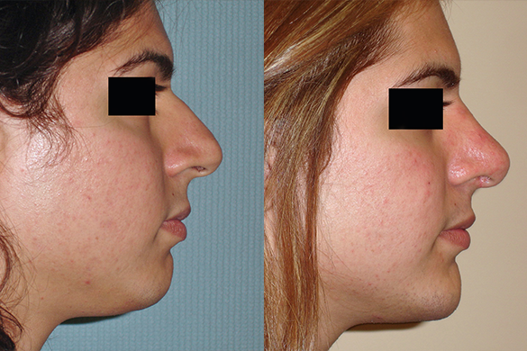 Rhinoplasty & Chin Augmentation Before & After Photos Right