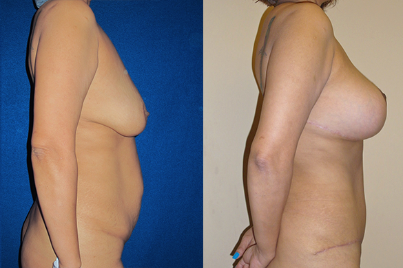 Mommy Makeover & Tummy Tuck Surgery Before & After Photos Right