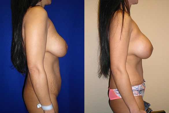 Mommy Makeover & Tummy Tuck Before & After Photos Right