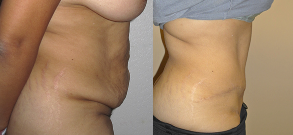 Tummy Tuck Orange County Before & After Photos Right
