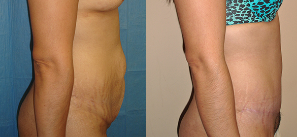 Tummy Tuck Before & After Photos Right