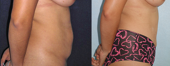 Tummy Tuck surgery Before & After Photos Right
