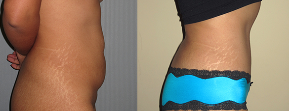 Tummy Tuck Surgery Before & After Photos Right Side