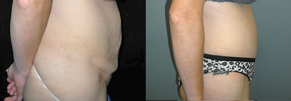 Abdominoplasty Santa Ana Before & After Photos Right Side