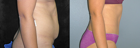 Tummy Tuck Orange County Before & After Photos Right Side