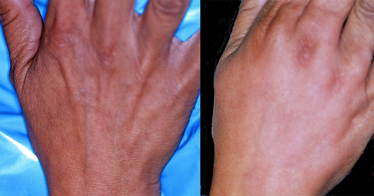 Hand Rejuvenation Before & After Photos