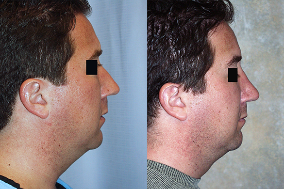 Rhinoplasty Before & After Photos