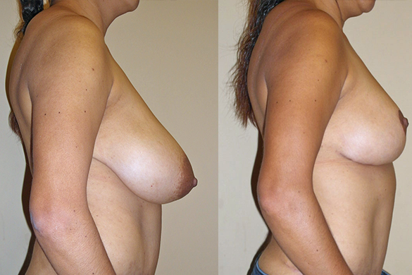 Breast Reduction Before & After Photos Right
