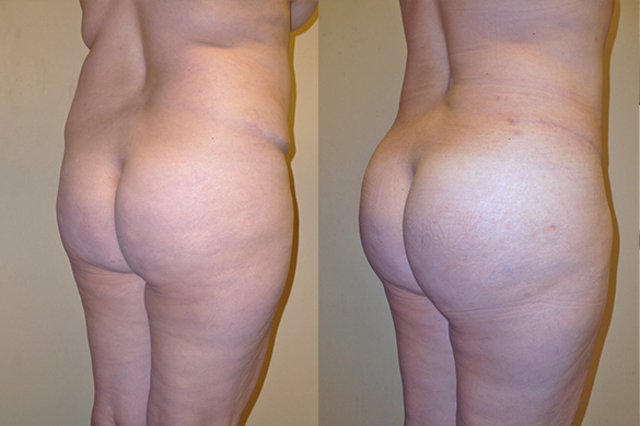 Buttock Augmentation Before & After Photos